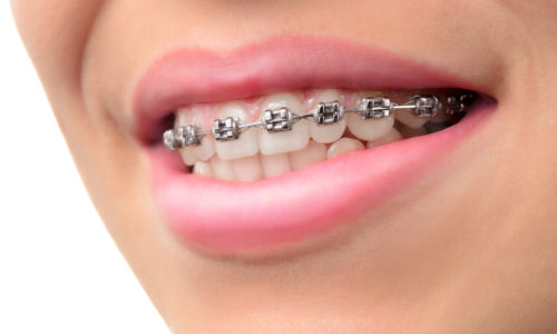 Close-up teeth with braces.  Woman healthy smile. Orthodontic Treatment